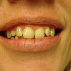 CEREC VENEERS (via mobile)