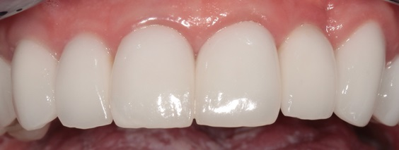CROWNS: Full Porcelain or Metal-Porcelain? - Image 1