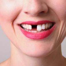 Dental Implants:  The procedure (video)