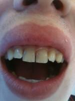 Gap between front teeth (via mobile)