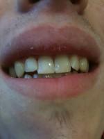 Gap between front teeth (via mobile) - Image 1