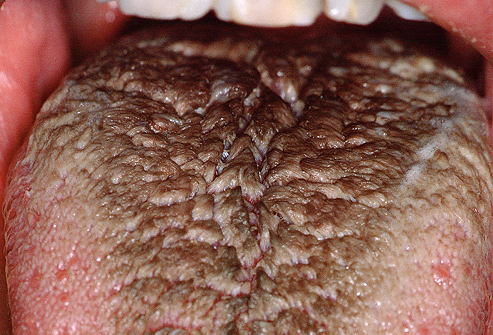 Hair on your tongue?