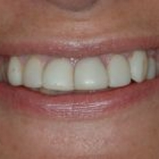 How do Veneers compare to Thineers? Which would you recommend?