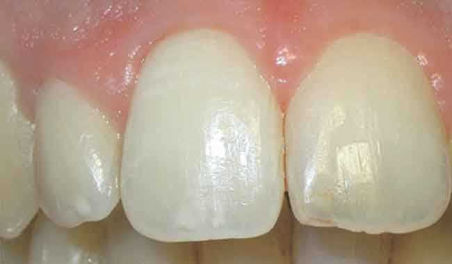 Teeth Whitening Cape Town