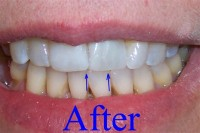 Straight teeth with a small budget - Image 1