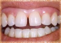 Test Your Dental IQ – June 2011 - Image 2