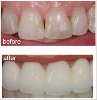 Test your Dental IQ - Image 2