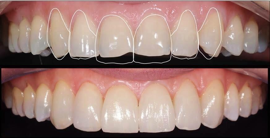 The magic of longer teeth - Image 6
