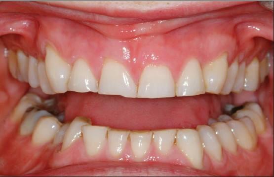 The magic of longer teeth - Image 7