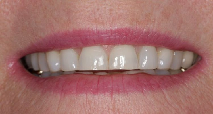 The magic of longer teeth - Image 8