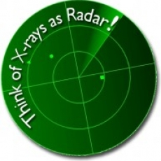 The Radar of Dentistry – Why x-rays are so important