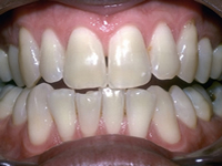 The SMILE TRIANGLE: The 5 STEP plan to your best smile - Image 11