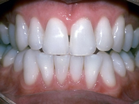 The SMILE TRIANGLE: The 5 STEP plan to your best smile - Image 12