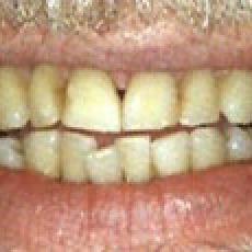 Yellow teeth…