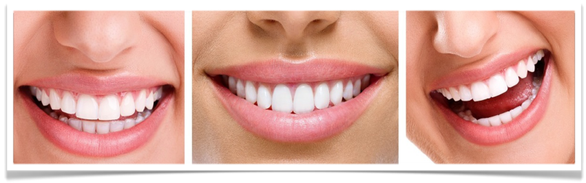 The Power of Teeth Whitening