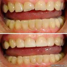 BEFORE: Worn down 4 front teeth due to teeth grinding.  AFTER:  Composite Fillings done in 1 visit and a bite plate must be warn to prevent future wear.