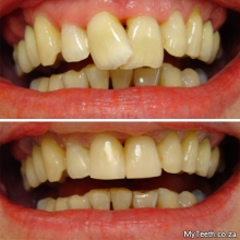 BEFORE: Heavily overlapping front teeth.  AFTER:  Cosmetic contouring and resin veneers done in 1 visit