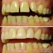 BEFORE:  Uneven gaps and alignment of teeth.  AFTER:  Gaps were closed with white fillings and composite bonding.