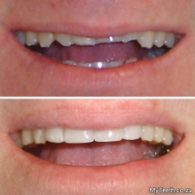 BEFORE:  Worn down front teeth.  AFTER:  Dental Veneers (resin) in 1 visit to change the patient's smile.