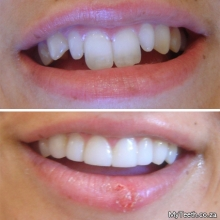 BEFORE:  Uneven front teeth with abnormal small laterals and overly long centrals. AFTER:  Gum reshaping and Dental Veneers in resin were used to shorten the centrals and build out the laterals to create a more pleasing smile.