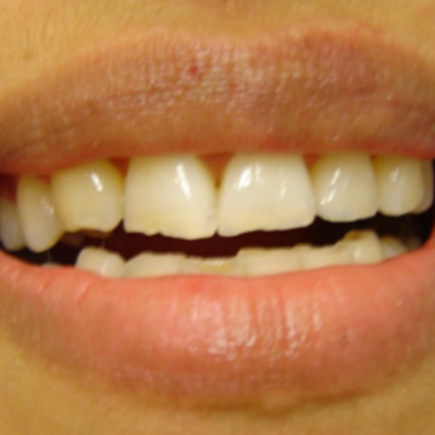 Chipped front teeth and uneven biting edges