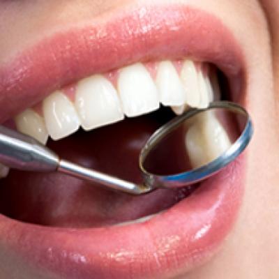 Dental Exam & Cavity Check