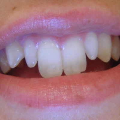 Front Teeth are Too Long or Too Short