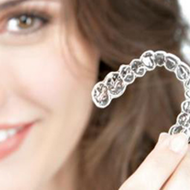 Clear Aligners - No Wires!