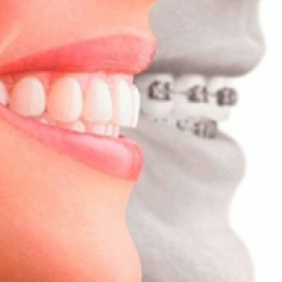 Clear Braces Consultation