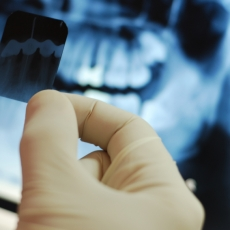 Are We Getting Too Much Radiation From Dental X-Rays?