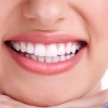 Our 4-in-1 Super Spring teeth whitening special!