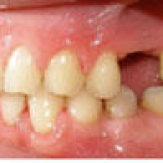 Tooth Movement Alternative to Bone Transplants