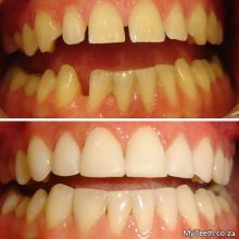 BEFORE:  Gap and uneven front teeth.  AFTER:  Dental Veneers re-shaped 4 front teeth in just 1 visit.
