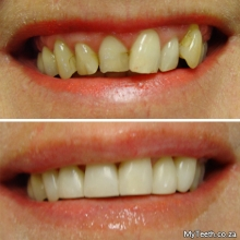 BEFORE:  Irregular teeth showing old defective white fillings.  AFTER:  Teeth reshaped and sculpted with composite fillings/veneers in just 2 hours.
