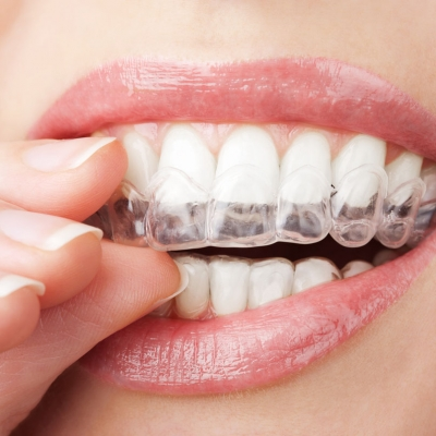 Tray Teeth Whitening