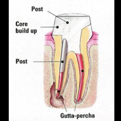 Post & Core