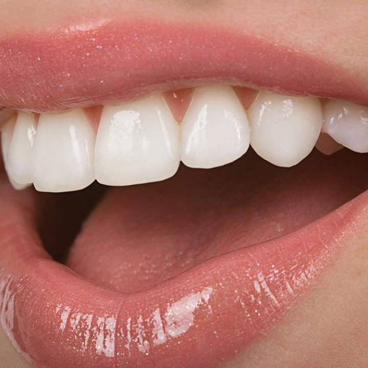Cerec Veneers