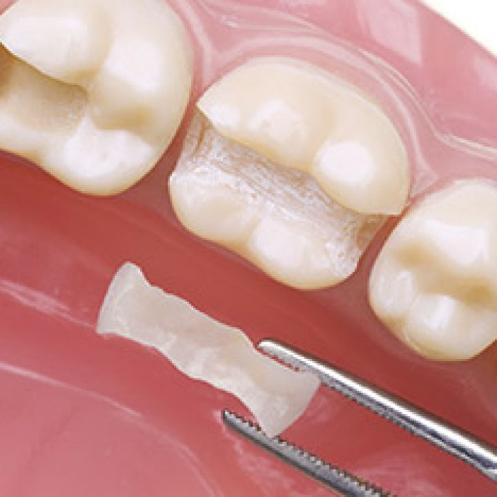 Cerec Fillings (Inlays/Onlays)