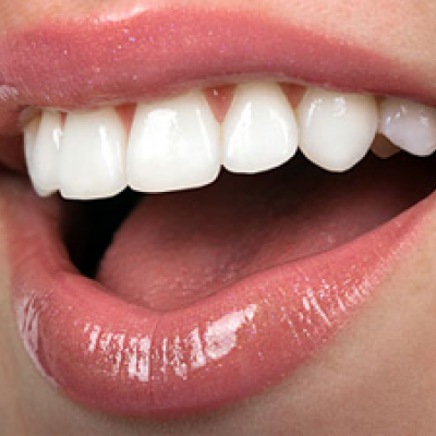 Resin Veneers Cape Town