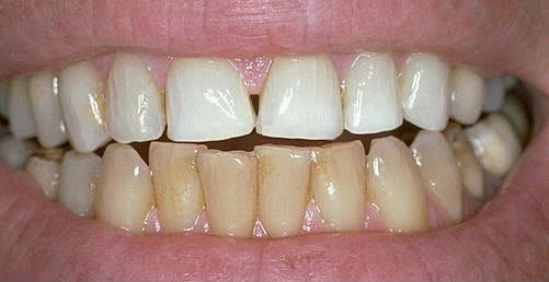 Do I need to Whiten my teeth first before I can get VENEERS?