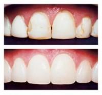 I've heard that I can get bonding on my teeth instead of veneers?  What is bonding?
