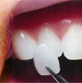 Let Dental Veneers be your ticket to a new you!