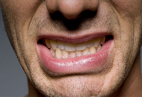 Studies find Botox can reduce nighttime bruxism
