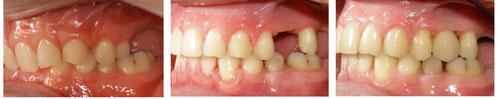 Tooth Movement Alternative to Bone Transplants