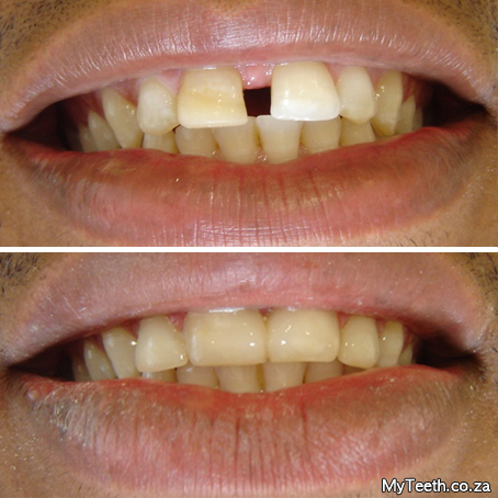 Dentist Cape Town | Cape Town Teeth Whitening | Cosmetic Dentist