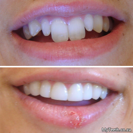 Dentist Cape Town Cape Town Teeth Whitening Cosmetic