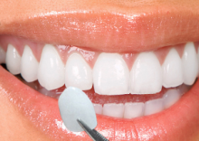 Porcelain Veneers Cape Town