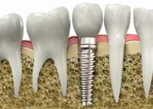 Dental Implants - Save Your Smile!