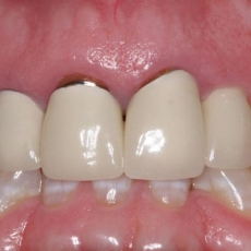 CROWNS: Full Porcelain or Metal-Porcelain?
