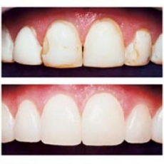 How Dental Bonding Can Alter the Look and Feel of Your Teeth?
